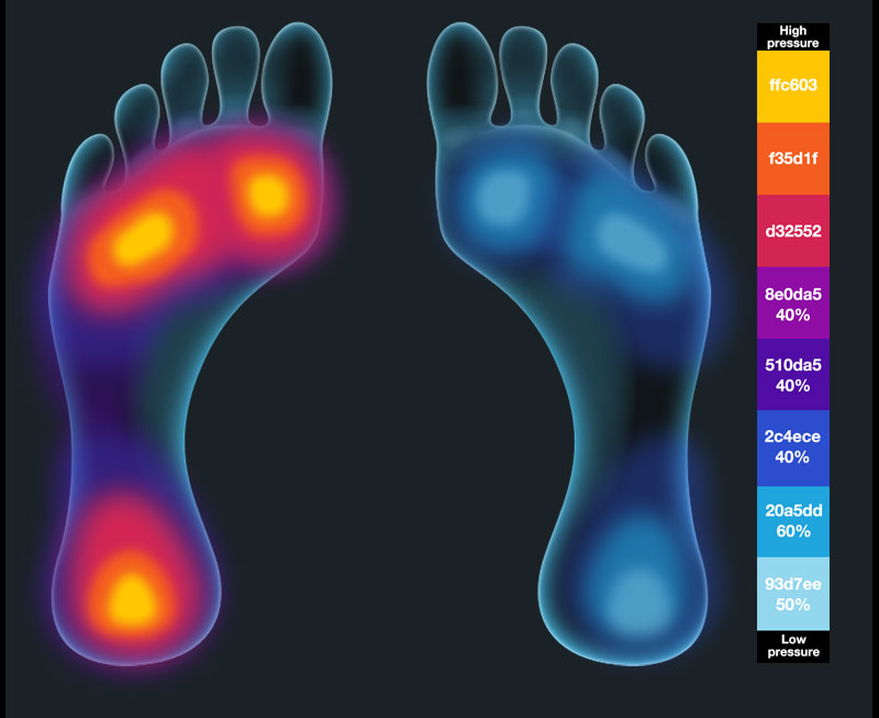foot pressure heat map